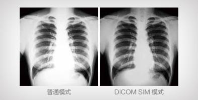 DICOM SIM模式 - Epson EB-C740X产品功能
