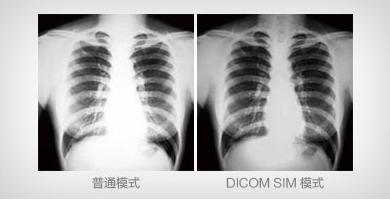 DICOM SIM 模式 - Epson EB-C754XN产品功能